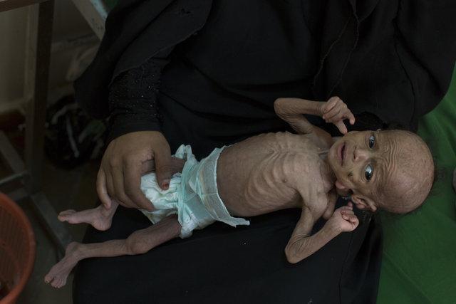 10 میلیون یمنی در یک قدمی گرسنگی