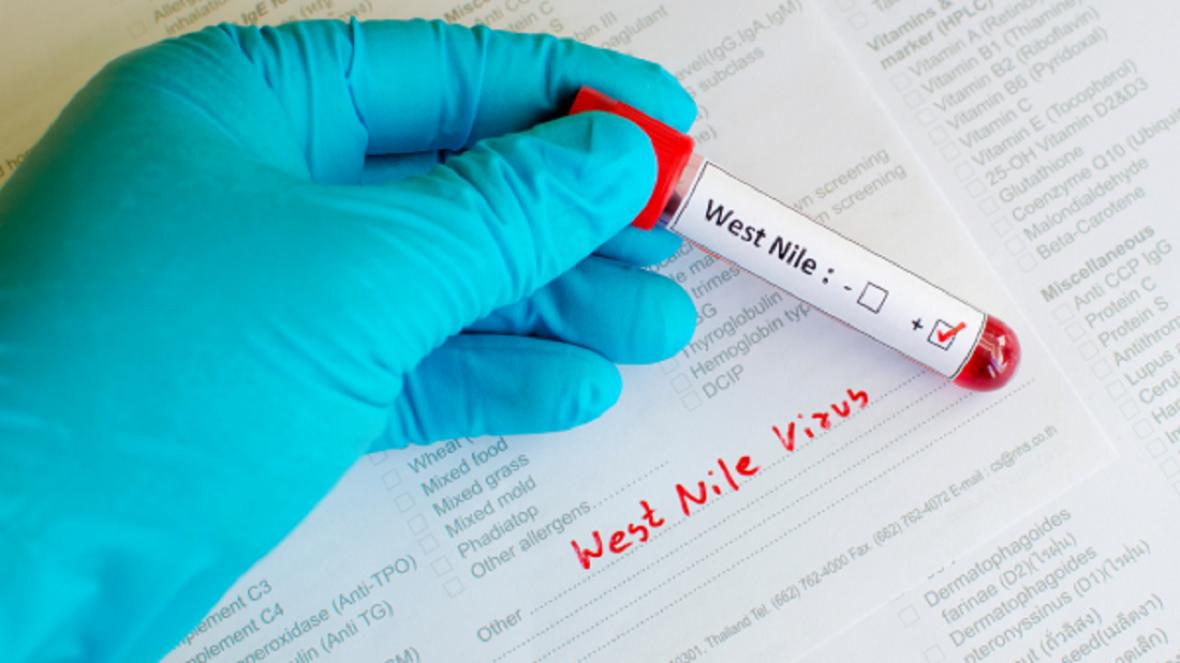 شیوع ویروسی نام آشنا در اسپانیا